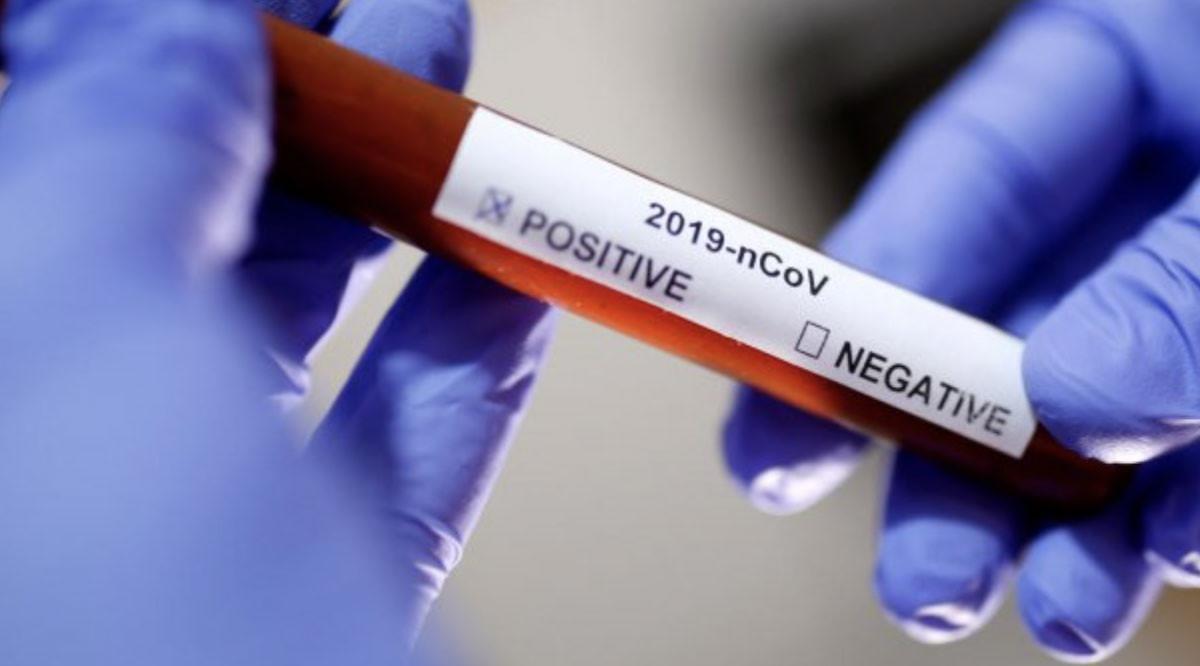 راهنمای پیشگیری و کنترل کرونا ویروس: ویژه کارکنان آزمایشگاههای تشخیص طبی و تحقیقاتی مرتبط