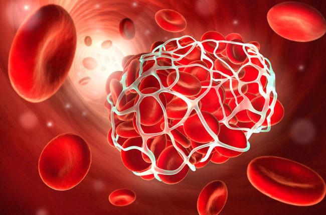 خطر تشکیل لخته خون بر اثر کویید۱۹